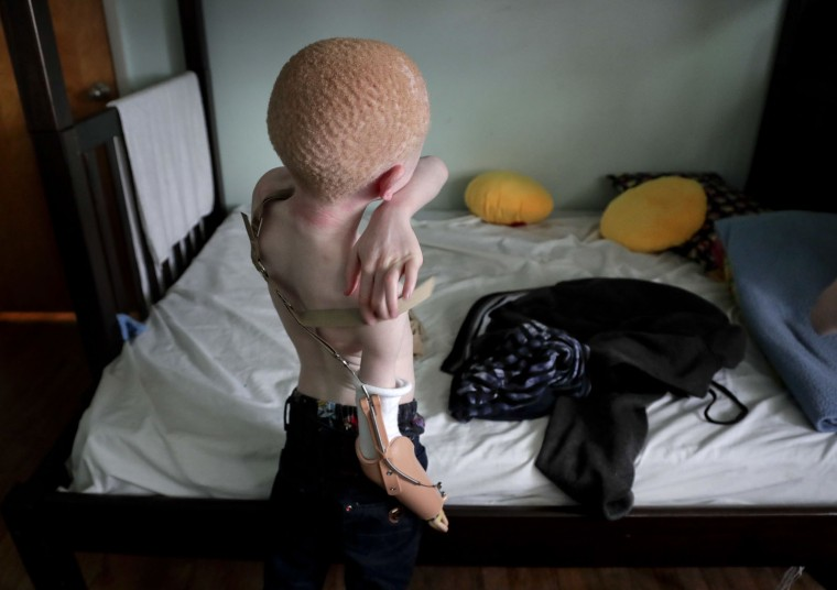 Emmanuel Festo, 7, adjusts the strap to his prosthetic are while preparing for a dinner invite, Sunday, June 4, 2017, in Staten Island, N.Y. Festo was one of four children from Tanzania who were on a return trip to New York to be refitted for new prosthesis for their growing bodies. The four, all albinos, lost limbs to attackers who believe body parts from albinos hold magical powers. (AP Photo/Julie Jacobson)