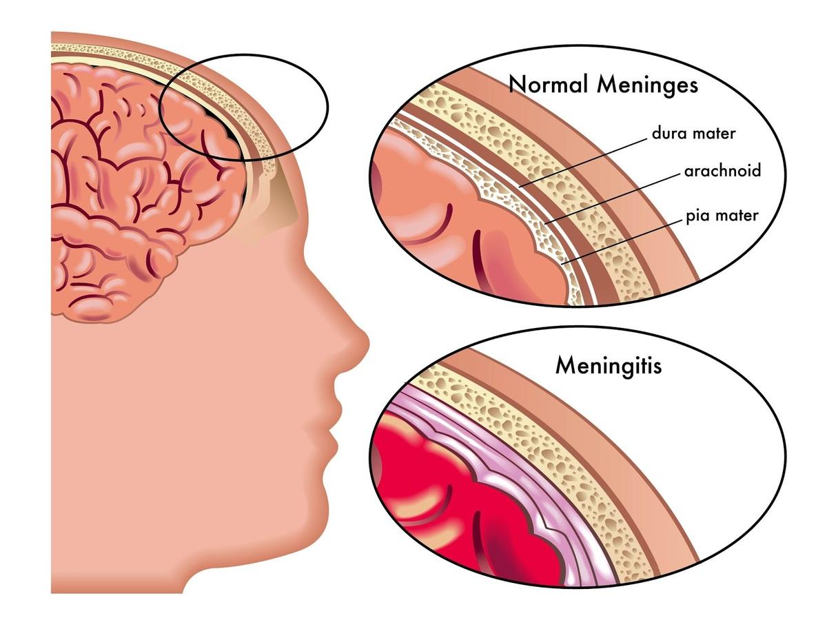 meningitis.jpg