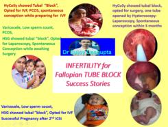 Tube Block Infertility Success