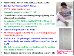IVF, No Fetal Movement, Emergency C section