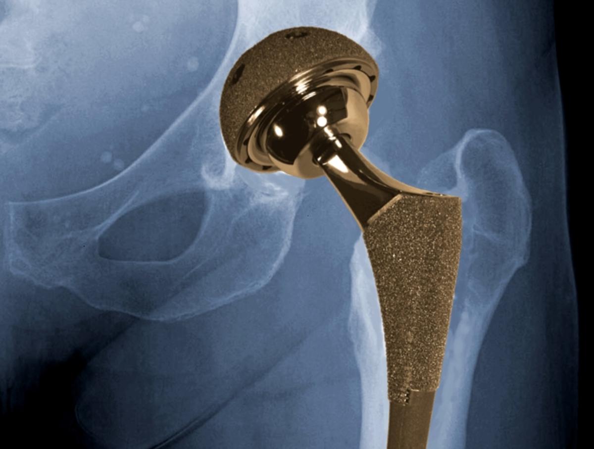 Hip-Implant.jpg