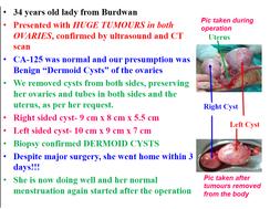 Huge Dermoid cyst surgery