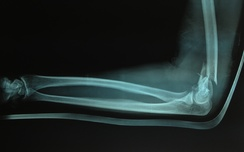 Fracture of lower end of humerus before surgery