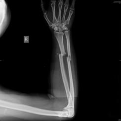 fracture radius ulna preop AP.jpg