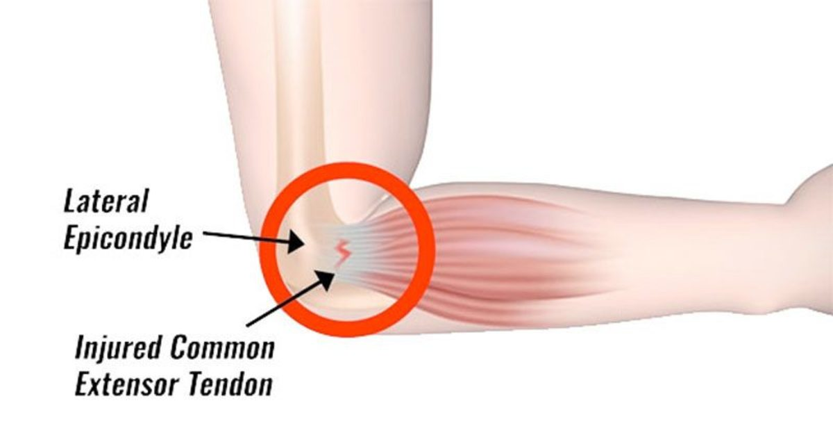 tennis-elbow800-800x426.jpg