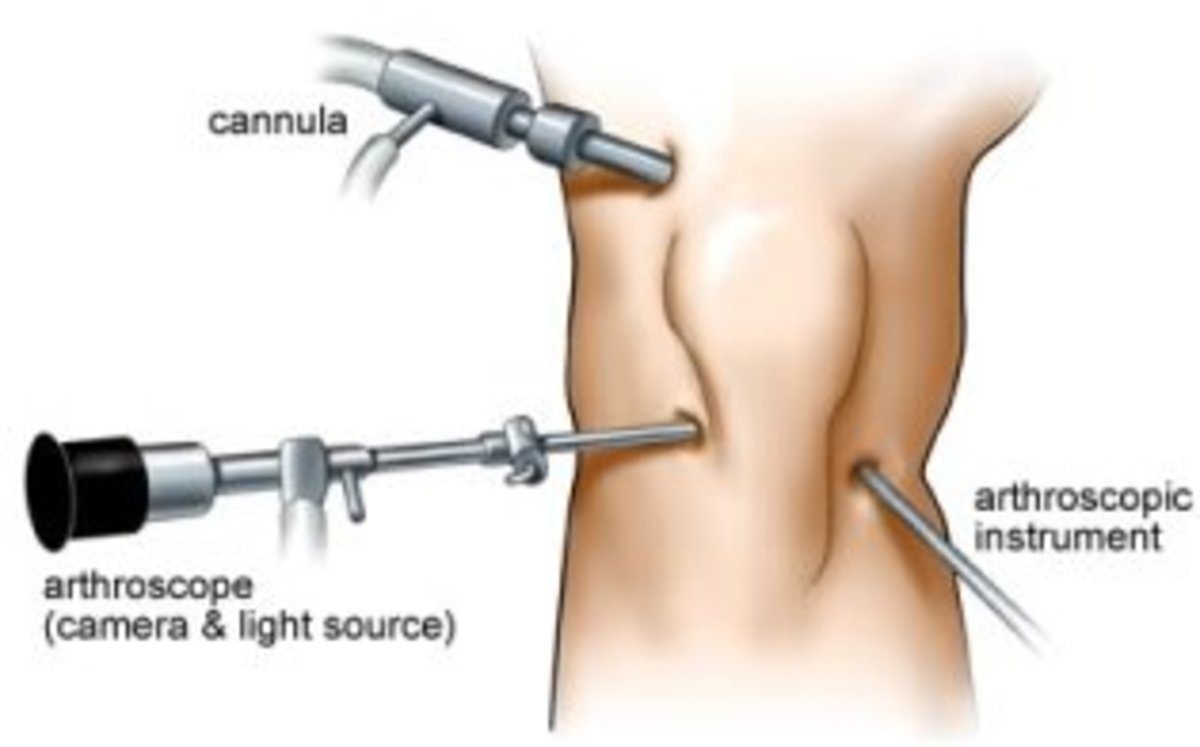 Arthroscope.jpg