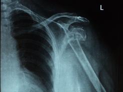 Fracture dislocation of left shoulder