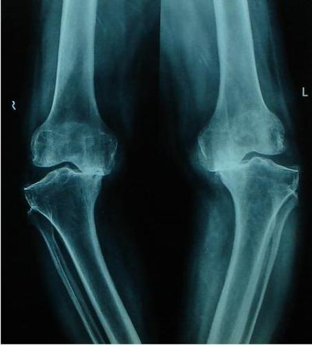 Osteoarthritis Both Knees Grade IV