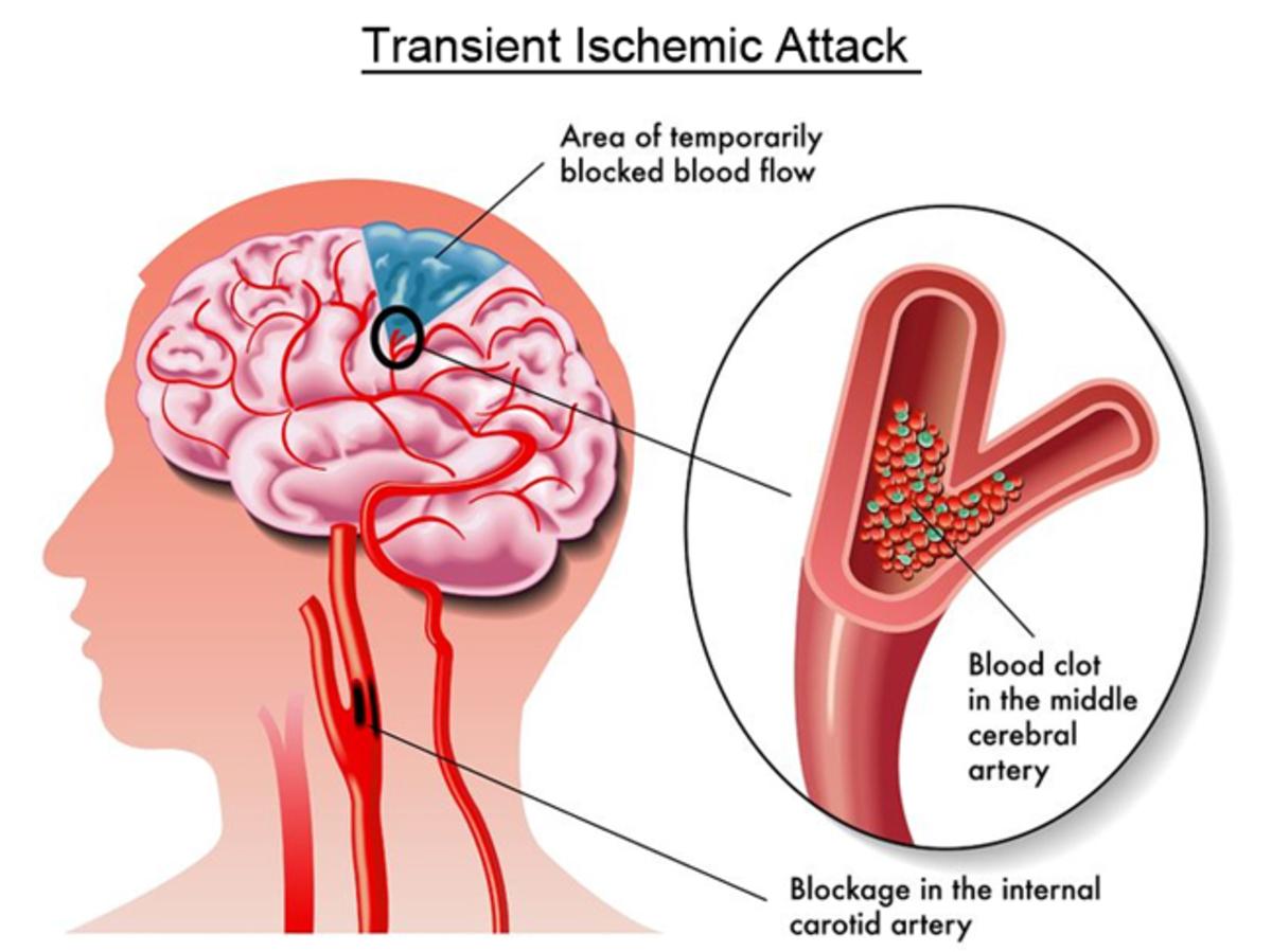 Transient-Ischemic-Attack.jpg