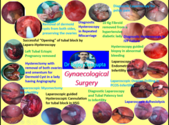 Surgery for Gynaecological problems