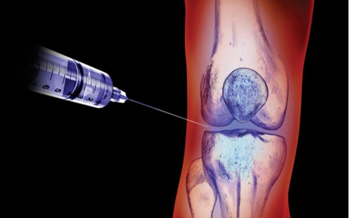 Knee injection logo.jpg