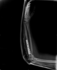 Elbow Fractures dislocations