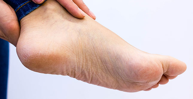 ontsteking voet hiel