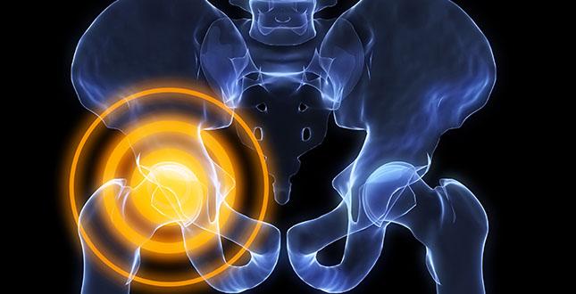 Peesontsteking van de heup: oorzaken, symptomen en behandeling