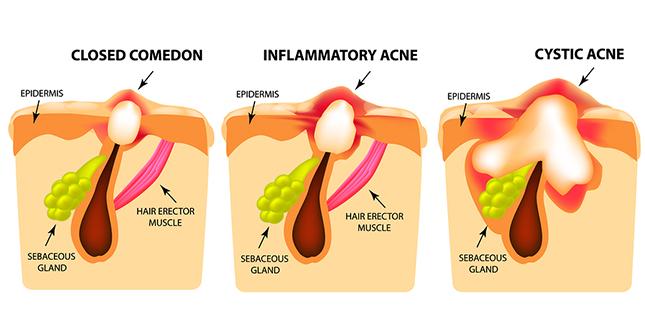 Types acne