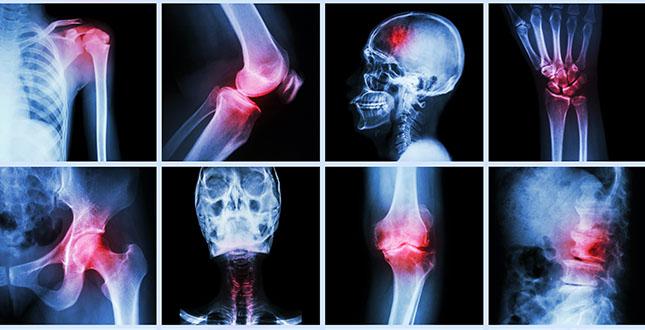 Hoe artritis klachten & pijn bestrijden (deel 1)