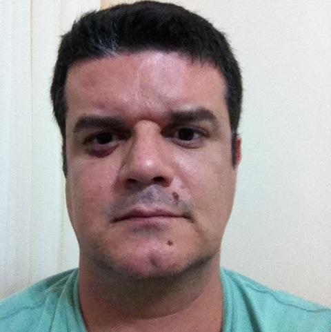 Robson Abreu