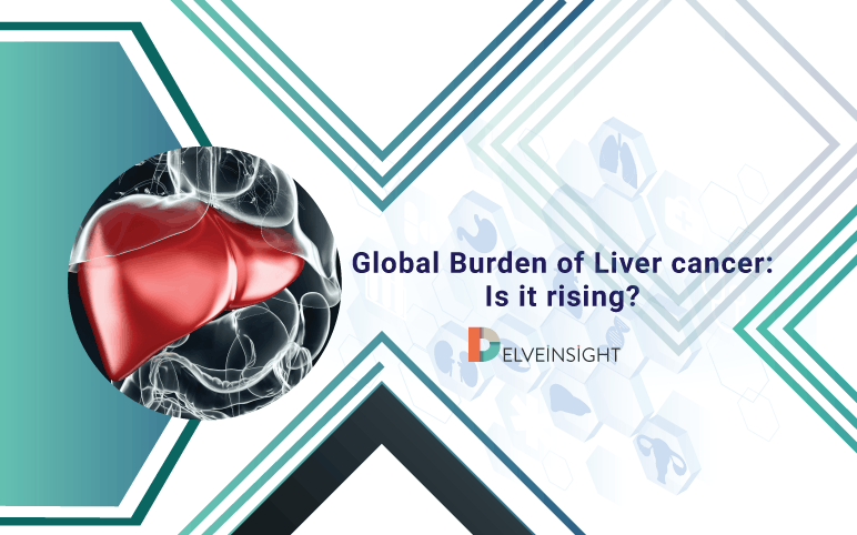 Global Liver Cancer Incidence