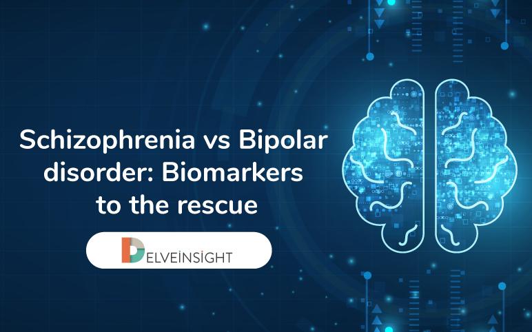 Schizophrenia vs Bipolar disorder: Biomarkers to the rescue
