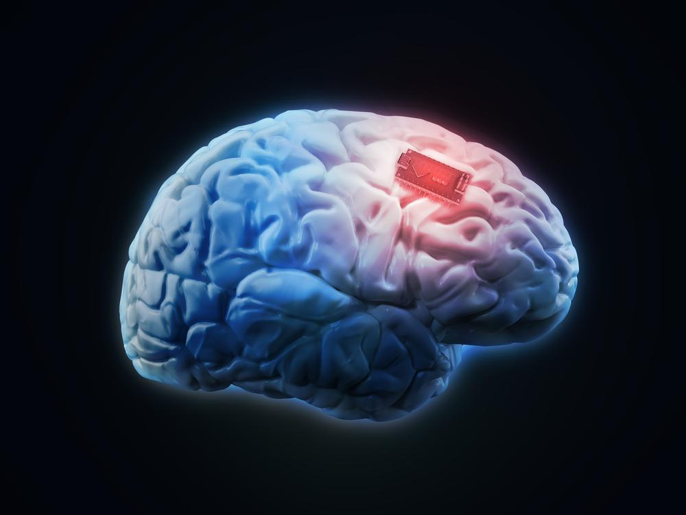 New remote-controlled brain implant can deliver medicine ...