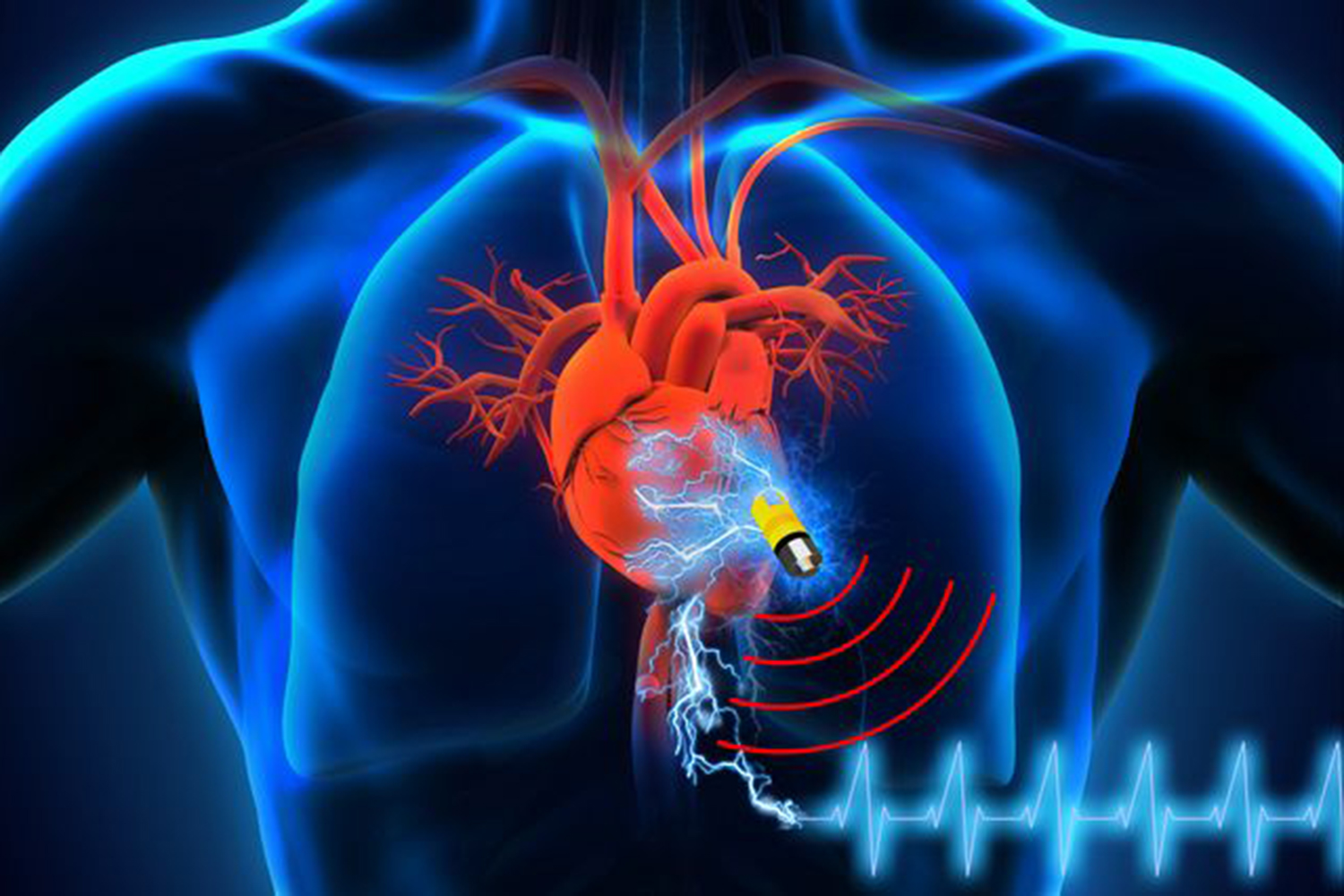 New design shows body's fluids could power pacemakers ...