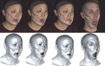 Accurate Markerless Jaw Tracking for Facial Performance Capture