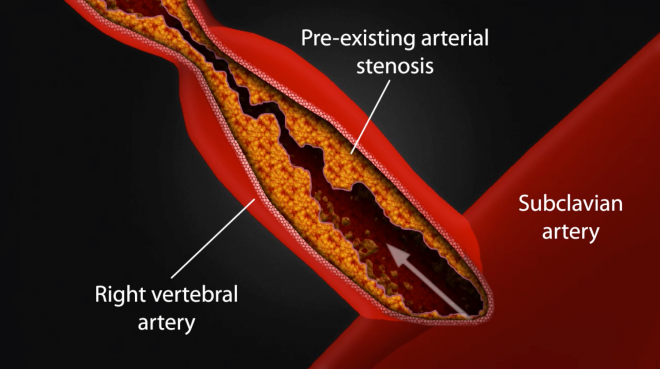 $925,000 Settlement - Incident Causes Dissected Artery