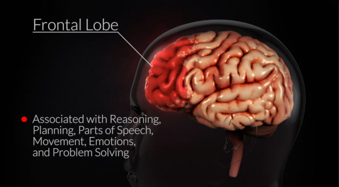 $10,000,000  In Results After Trial - Traumatic Brain Injuries Argued in the Courtroom
