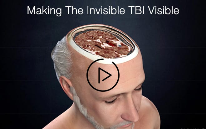 Making The Invisible TBI Visible