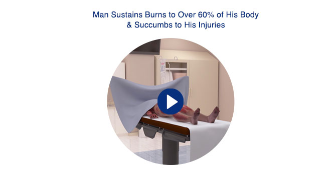 Man Sustains Burns to Over 60% of His Body