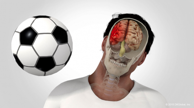 Man Sustains Traumatic Brain Injury At Sporting Event