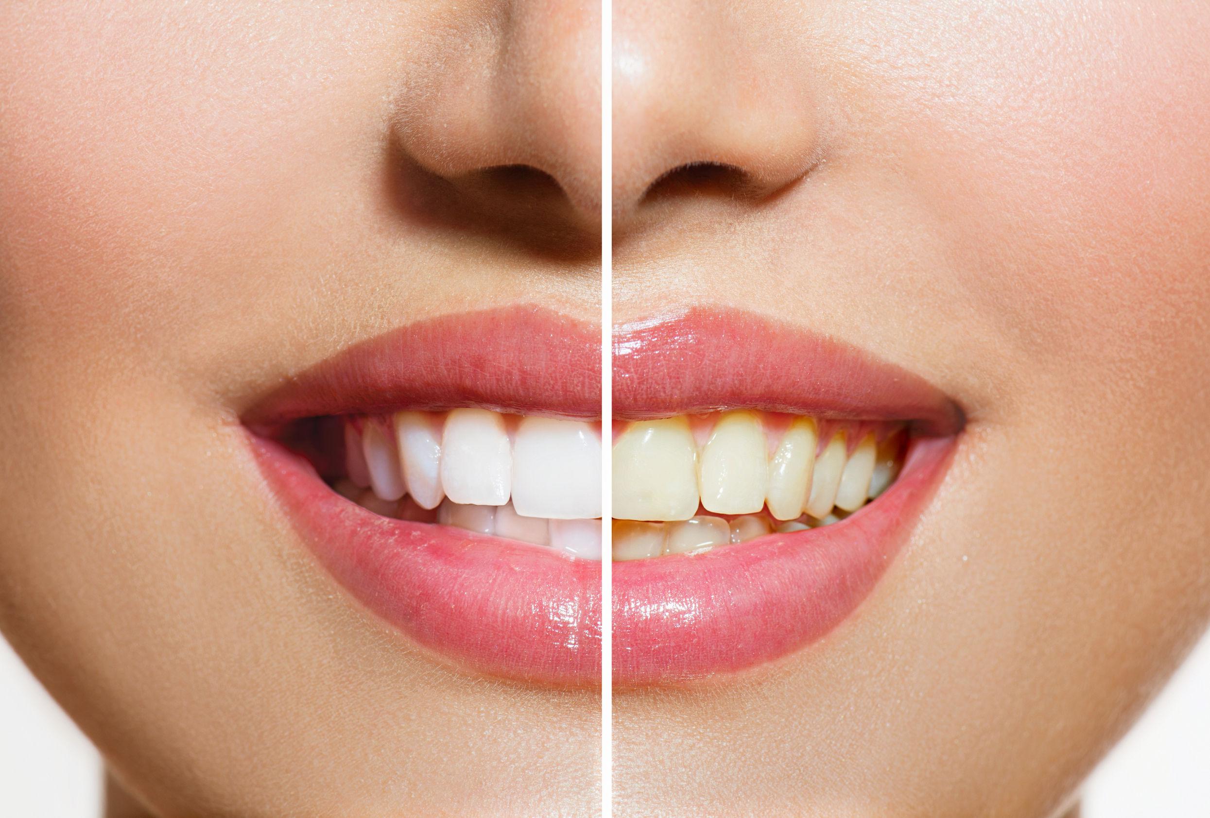 Roslyn Teeth Whitening Image