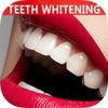 Best Natural Way To Whiten Teeth