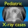 PediatricXR