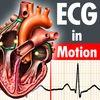 ECGinMotion