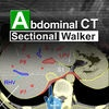 Abdominal CT Sectional Walker