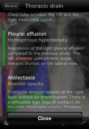 Screenshot RealWorld Radiology on iPhone
