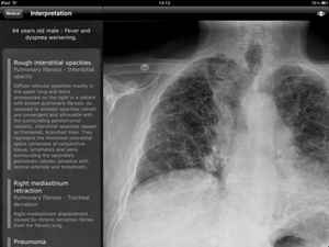Screenshot RealWorld Radiology on iPad