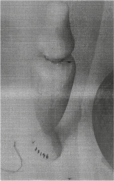 fig575