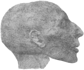 fig35