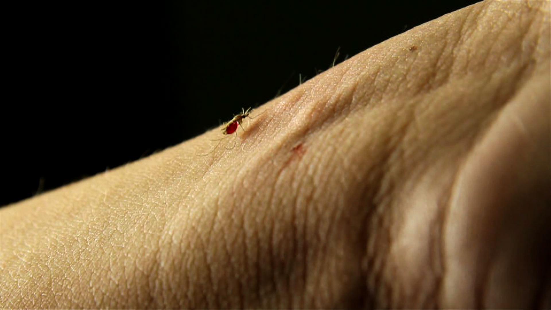MALARIA  PROGRESS REPORT