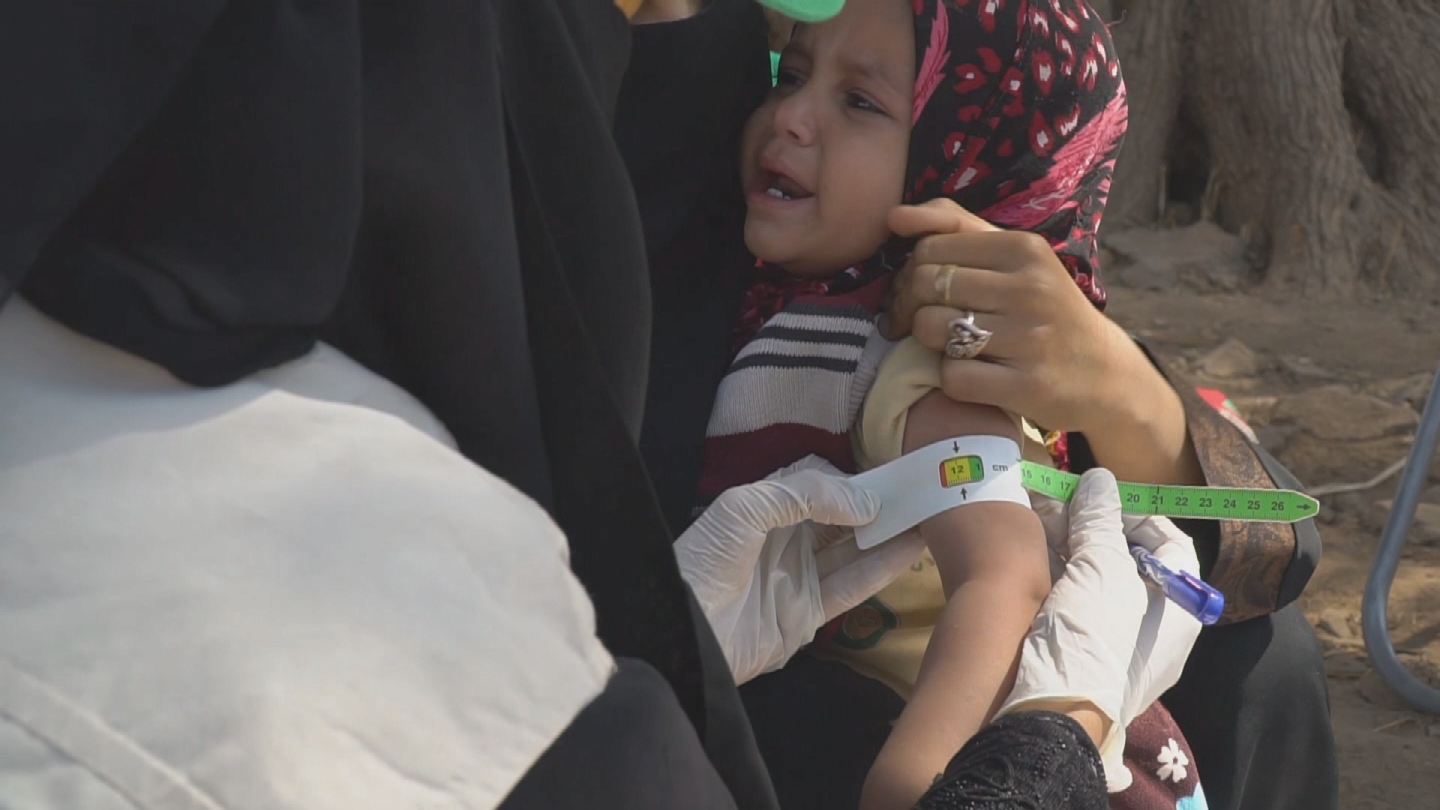 YEMEN  CHILDHOOD MALNUTRITION