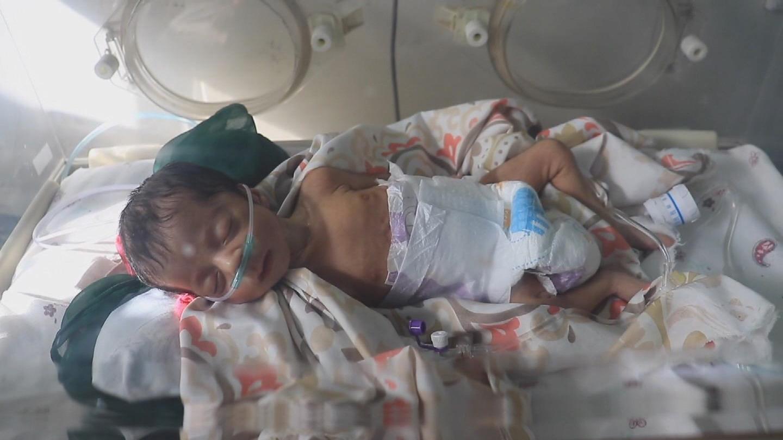 UNICEF  AFGHANISTAN CHILDREN MALNUTRITION