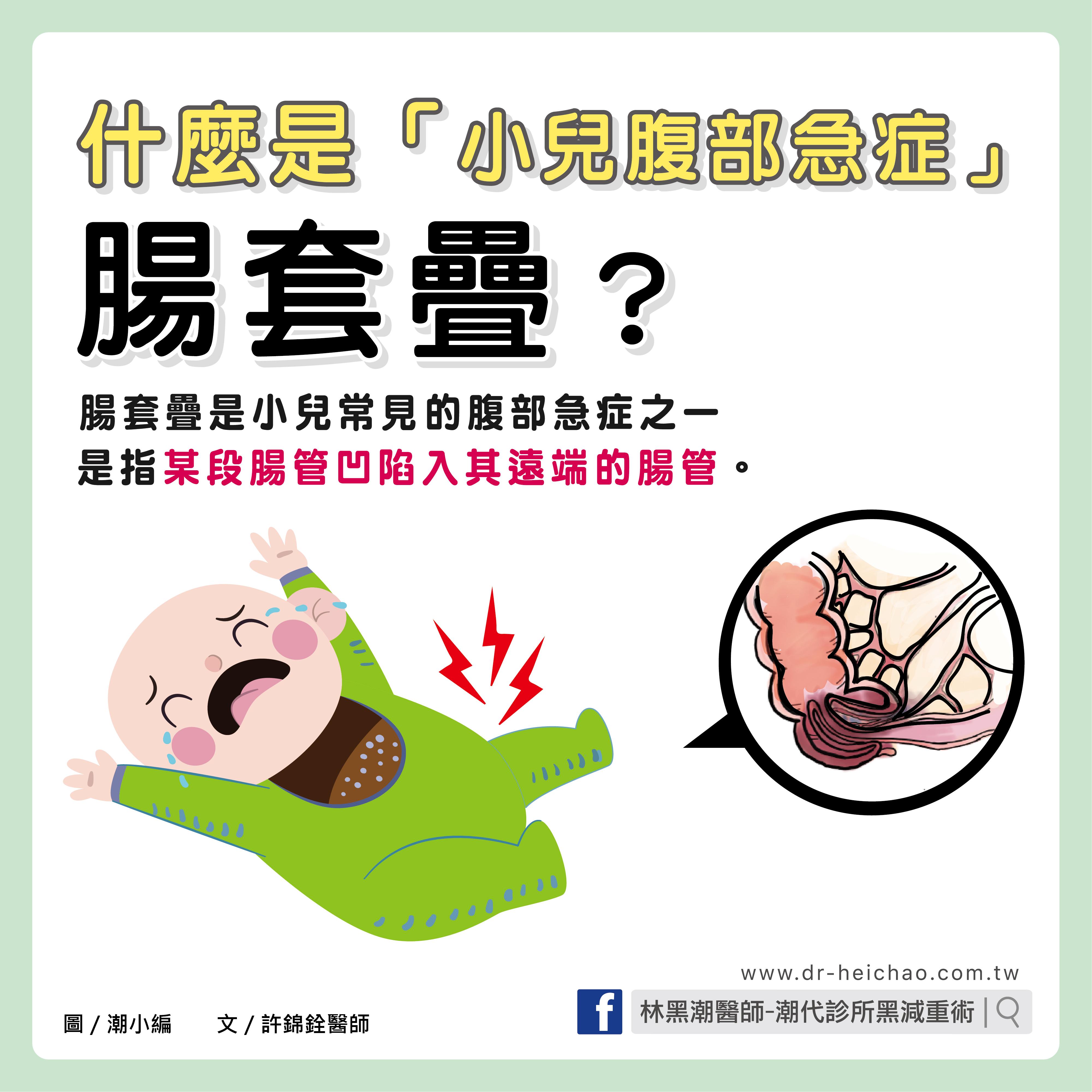 小兒腹部急症腸套疊/文:許錦銓醫師
