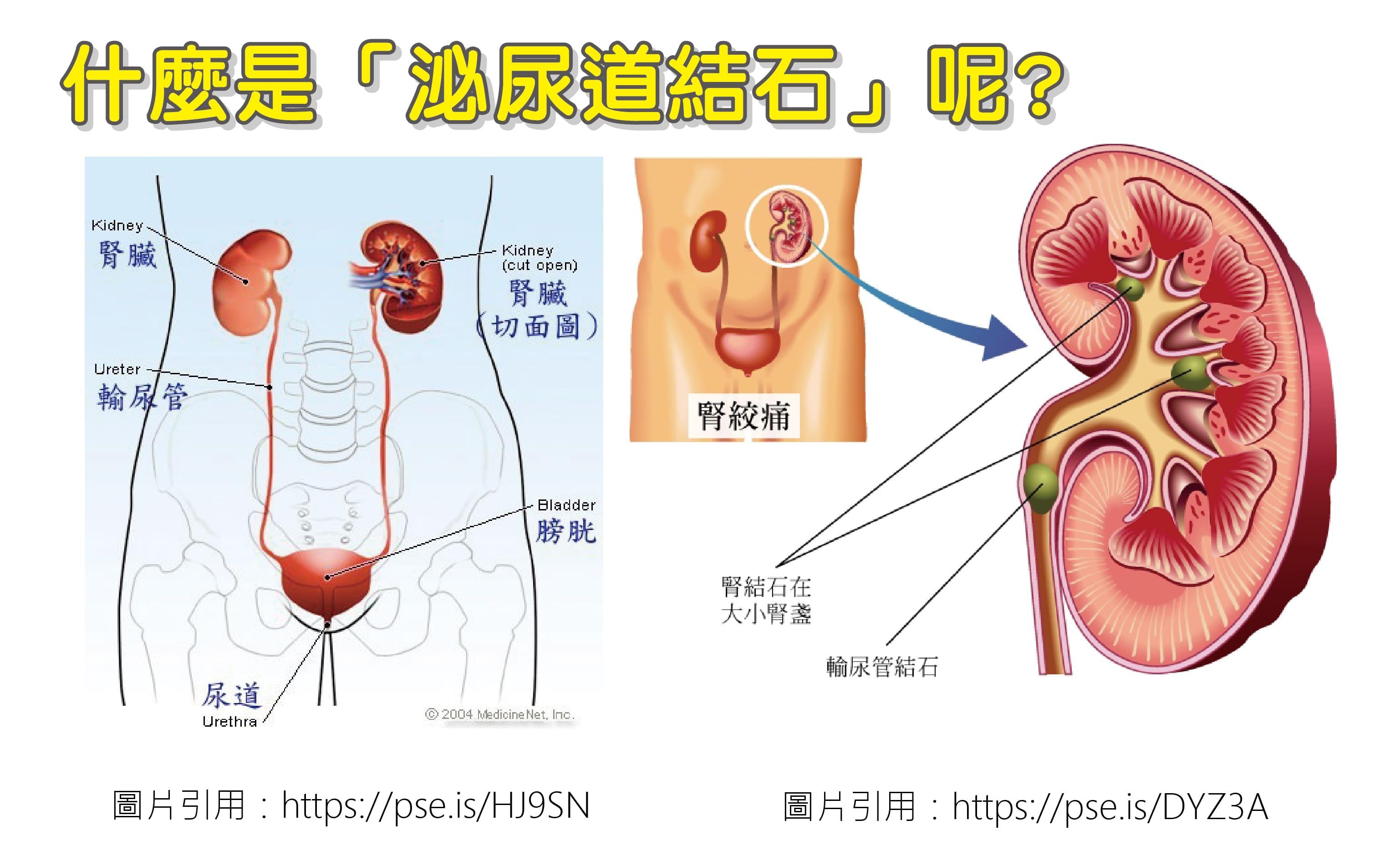 請問什麼是「泌尿道結石」呢?