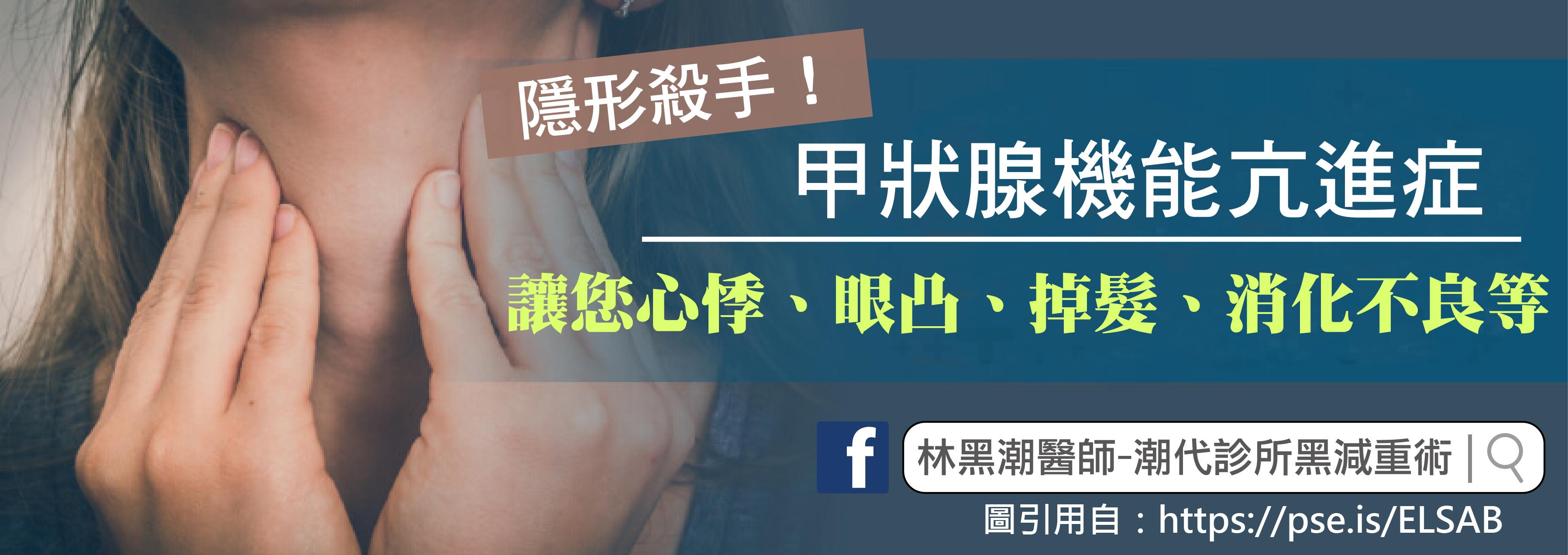 甲狀腺機能亢進/文:沈孟娟醫師
