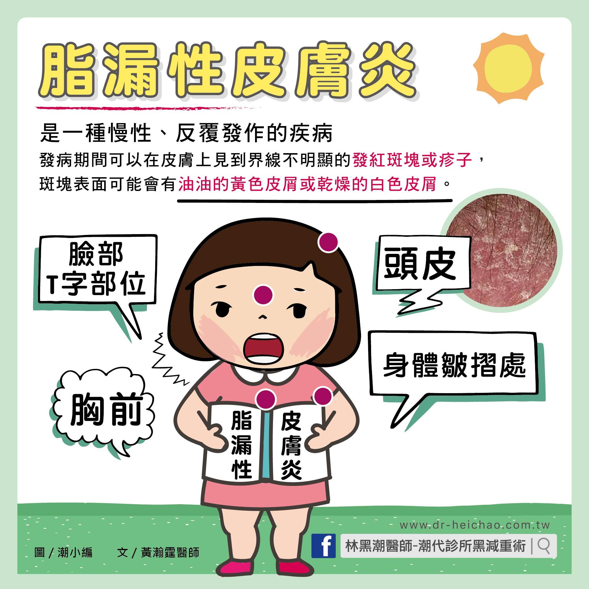 脂漏性皮膚炎/文:黃瀚霆醫師 Facebook logo