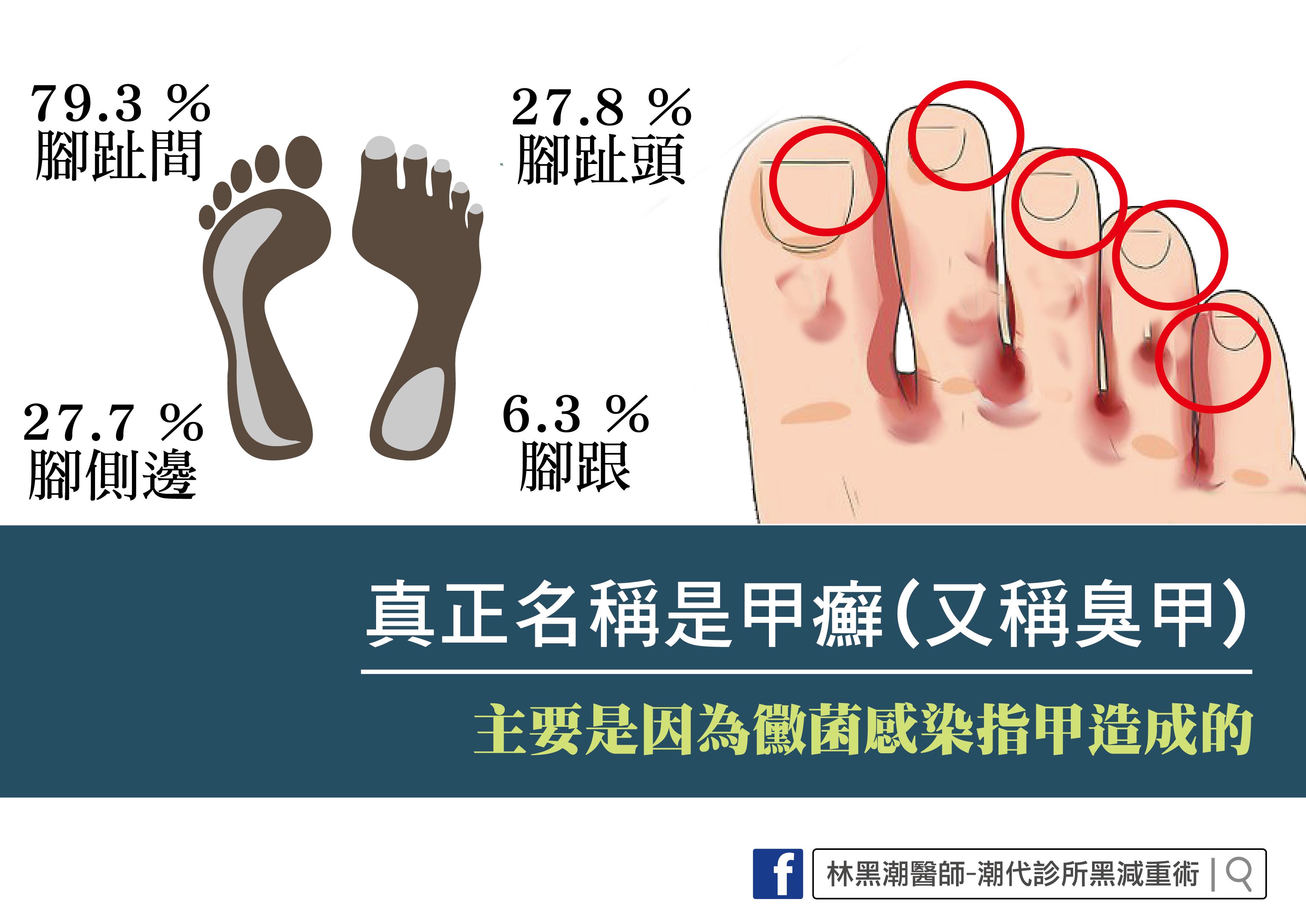 香港腳與灰指甲 /文:王世杰醫師
