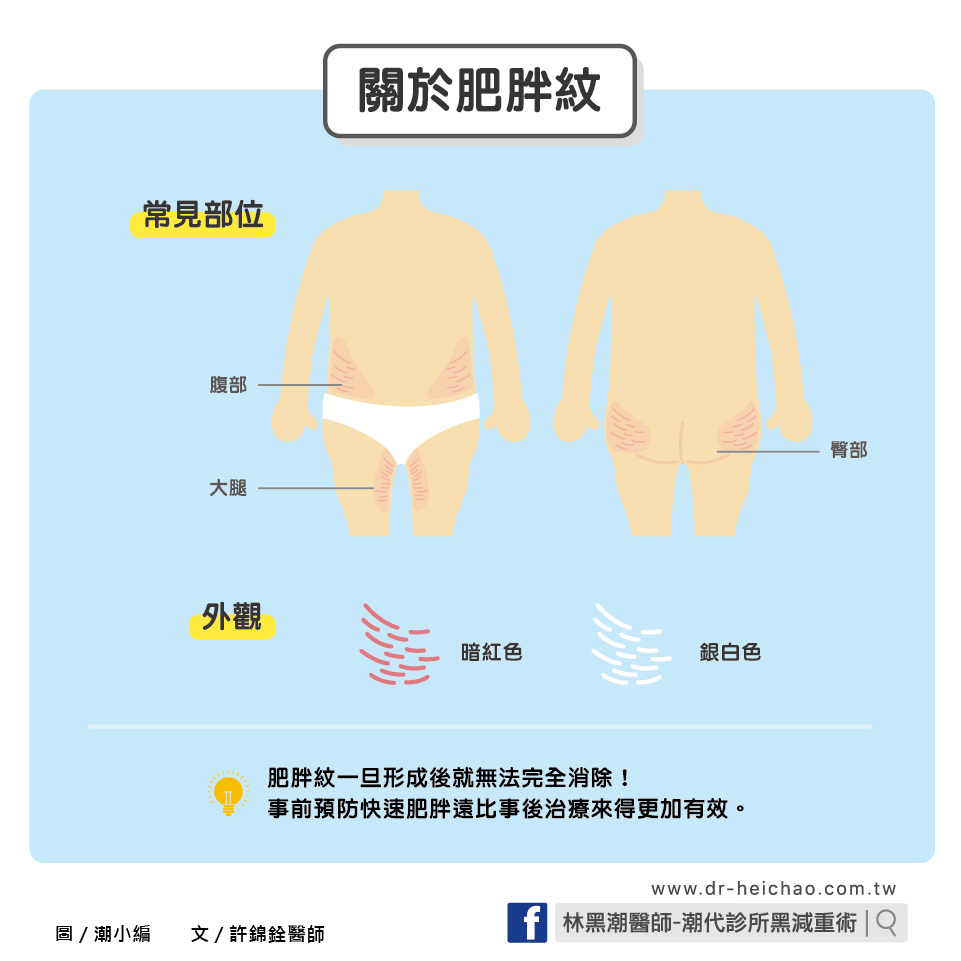 快速肥胖,小心肥胖紋糾纏/文:許錦銓醫師