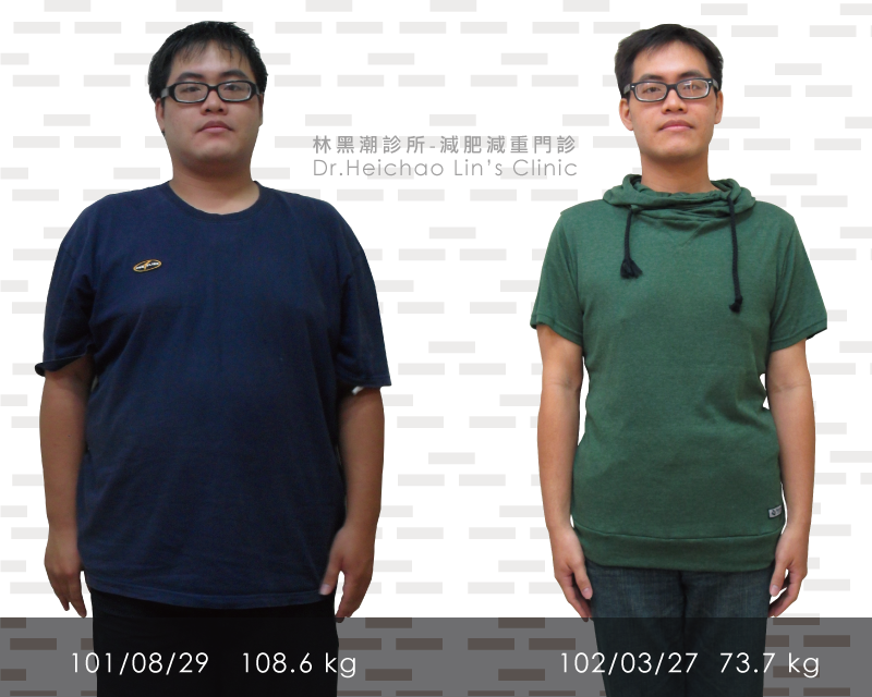 減重實例-減肥34公斤